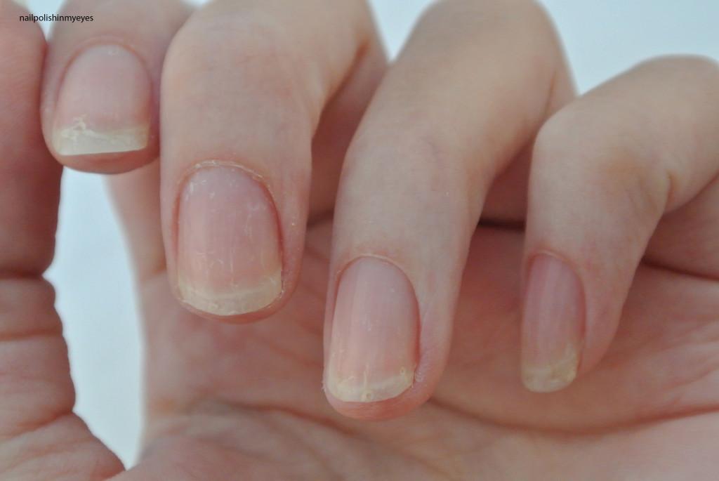 Eczema-Nails-April