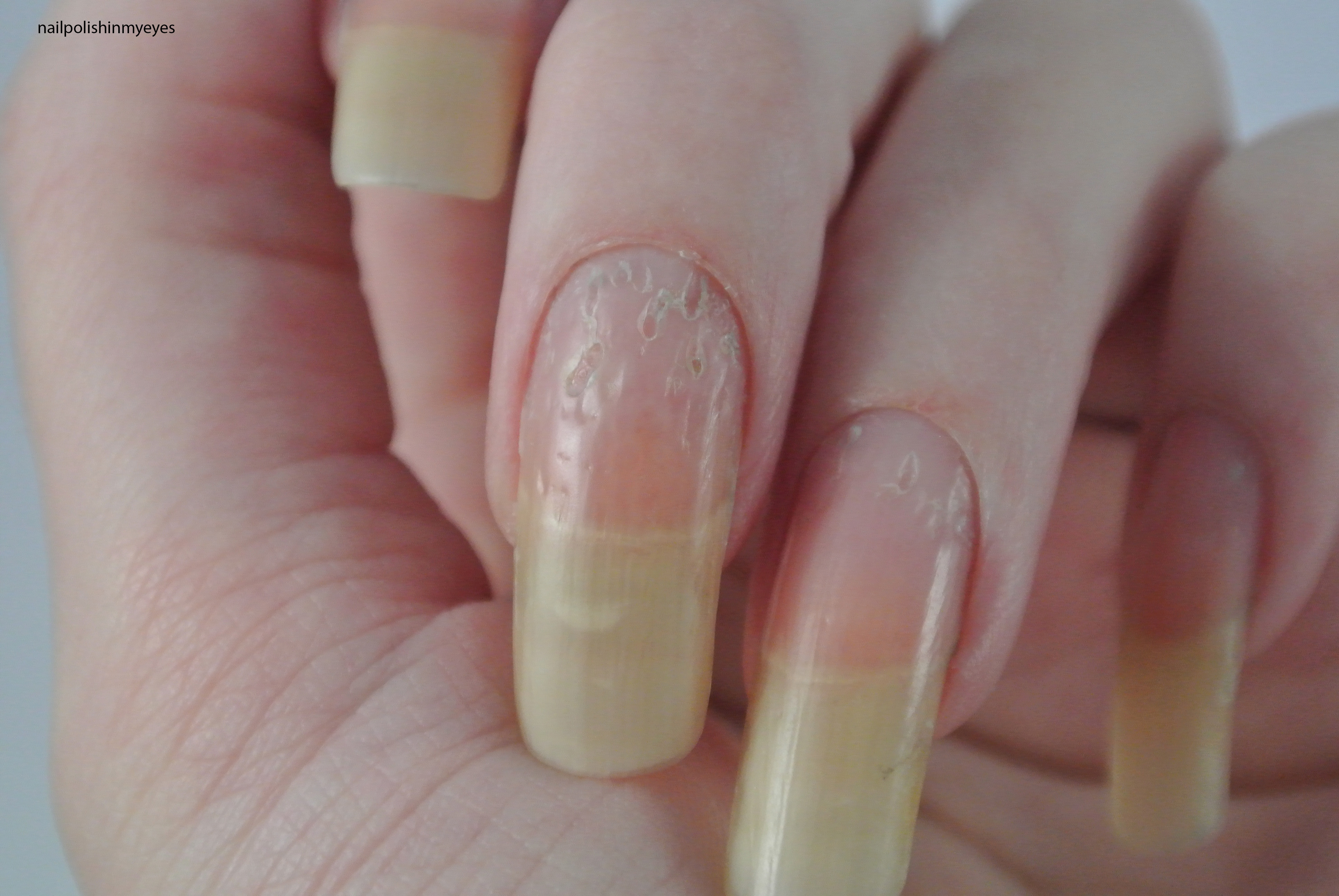 How eczema affected my nails… | Nail Polish in my Eyes