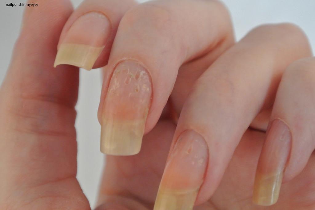 Eczema-Nails-Jan