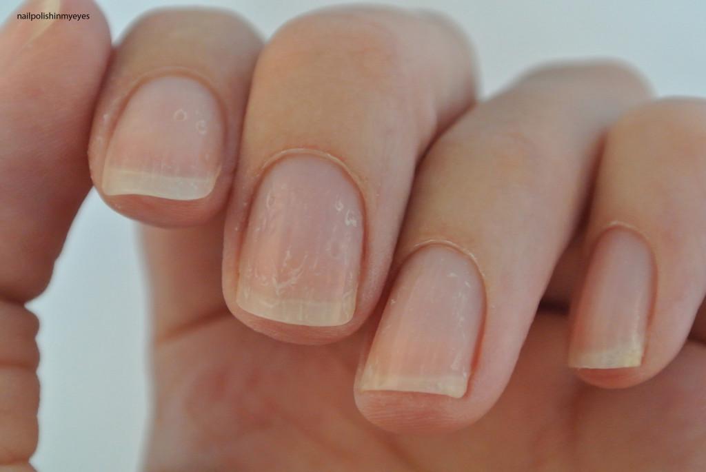 Eczema-Nails-June