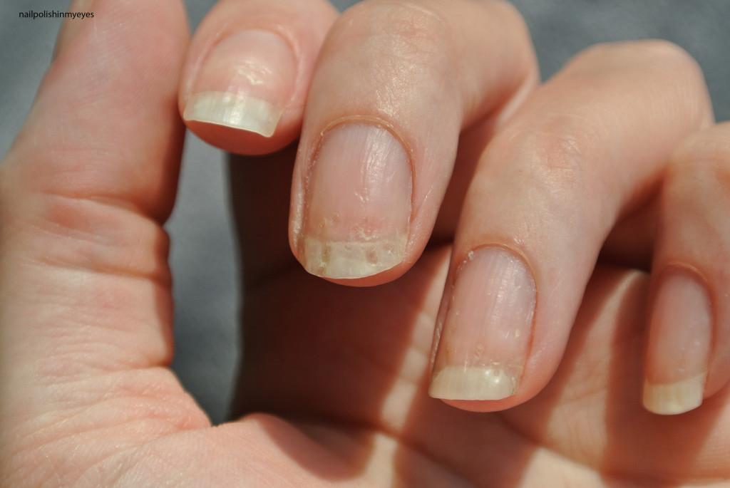 Eczema-Nails-March