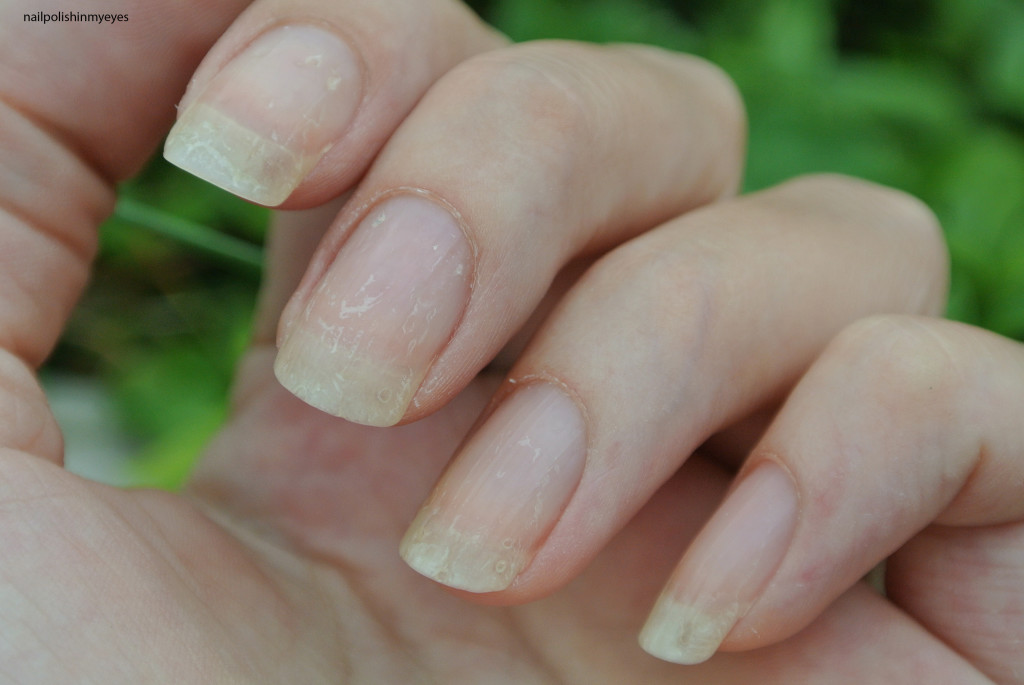 Eczema-Nails-May